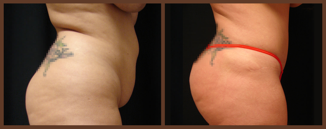 abdominoplasty-before-and-after-2-virginia-beach-plastic-surgeon-VA-0061-denk