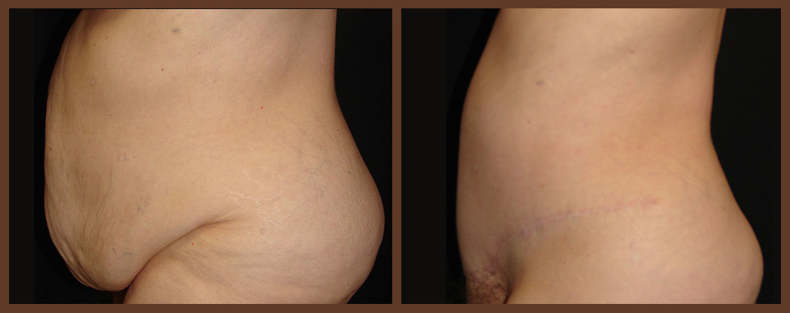 abdominoplasty-before-and-after-2-virginia-beach-plastic-surgeon-VA-0065-denk
