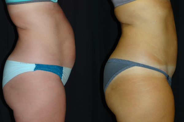 abdominoplasty-before-and-after-2-virginia-beach-plastic-surgeon-VA-101-Denk