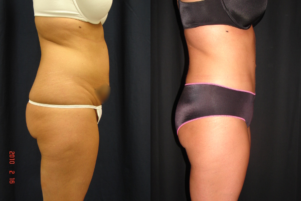 abdominoplasty-before-and-after-2-virginia-beach-plastic-surgeon-VA-101-JSJ