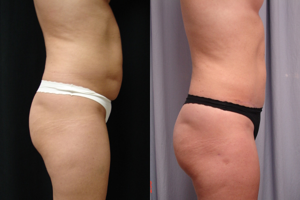 abdominoplasty-before-and-after-2-virginia-beach-plastic-surgeon-VA-102-Denk
