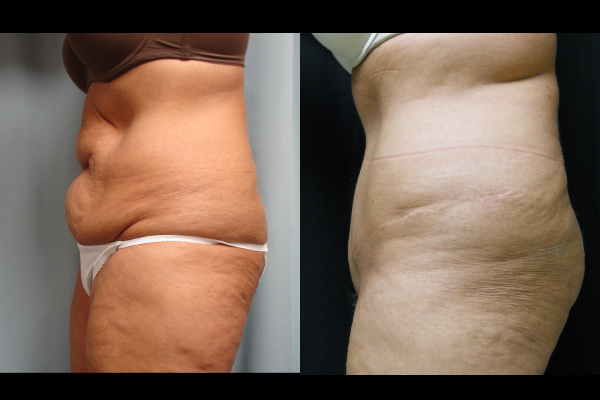 abdominoplasty-before-and-after-2-virginia-beach-plastic-surgeon-VA-102-JSJ