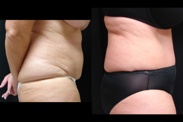abdominoplasty-before-and-after-2-virginia-beach-plastic-surgeon-VA-104-JSJ