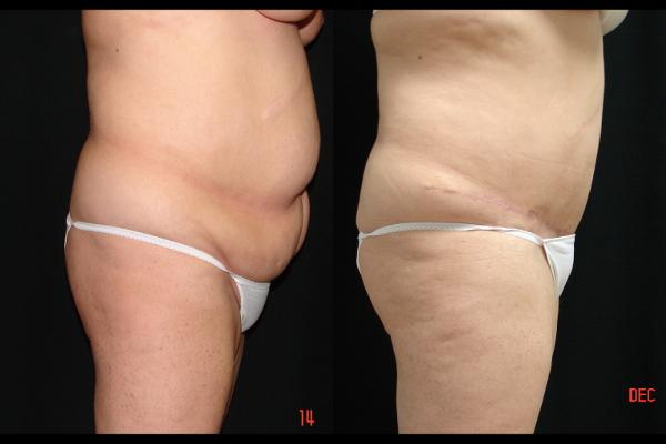 abdominoplasty-before-and-after-2-virginia-beach-plastic-surgeon-VA-105-JSA