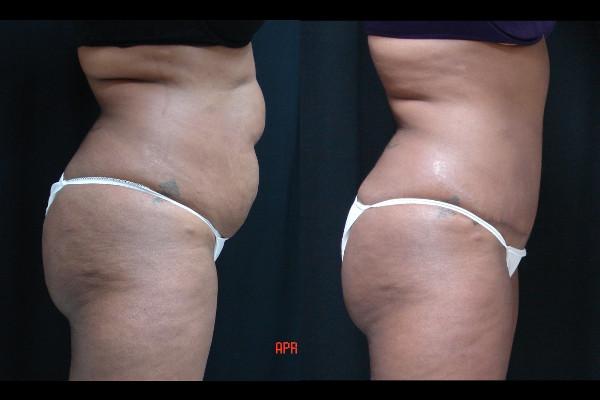 abdominoplasty-before-and-after-2-virginia-beach-plastic-surgeon-VA-112-JSA