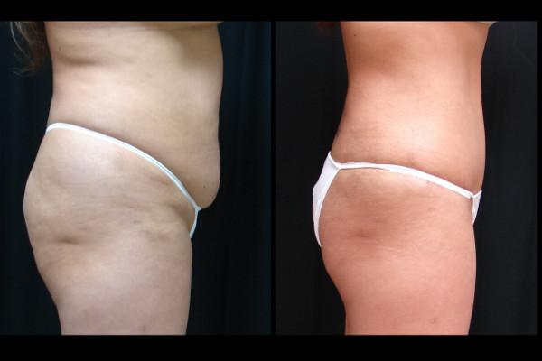 abdominoplasty-before-and-after-2-virgnia-beach-plastic-surgeon-VA-111-JSA