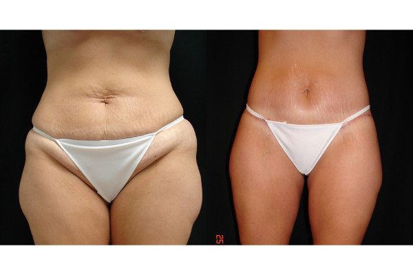 abdominoplasty-before-and-after-virginia-beach-plastic-surgeon-VA-101-JSA