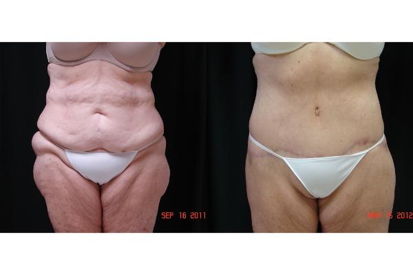 abdominoplasty-before-and-after-virginia-beach-plastic-surgeon-VA-102-JSA