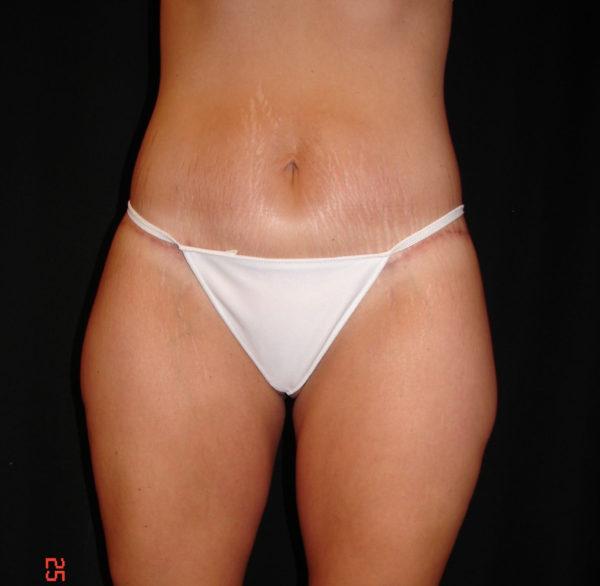 abdominoplasty-post-op-1-virginia-beach-plastic-surgeon-VA-101-JSA