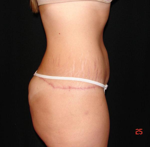 abdominoplasty-post-op-2-virginia-beach-plastic-surgeon-VA-101-JSA