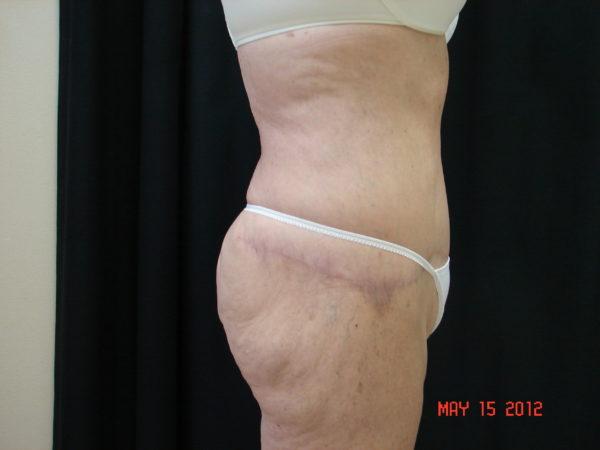 abdominoplasty-post-op-2-virginia-beach-plastic-surgeon-VA-102-JSA