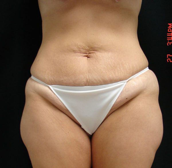 abdominoplasty-pre-op-1-virginia-beach-plastic-surgeon-VA-101-JSA