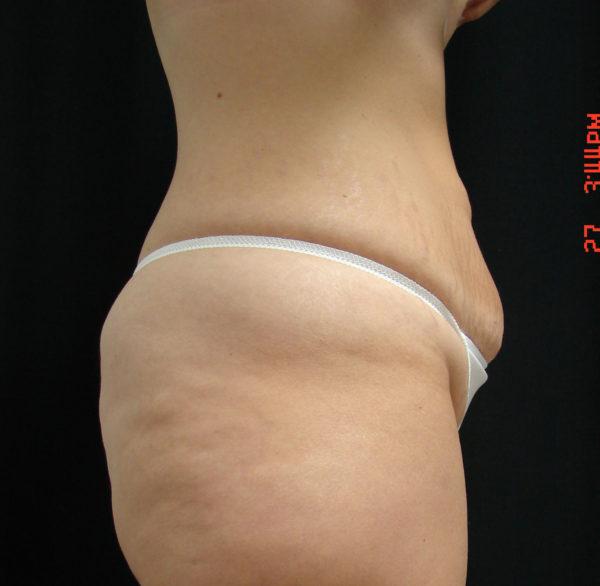 abdominoplasty-pre-op-2-virginia-beach-plastic-surgeon-VA-101-JSA