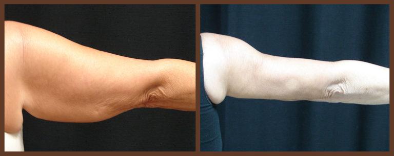 arm-lift-before-and-after-1-virginia-beach-plastic-surgeon-VA-0098-JSA