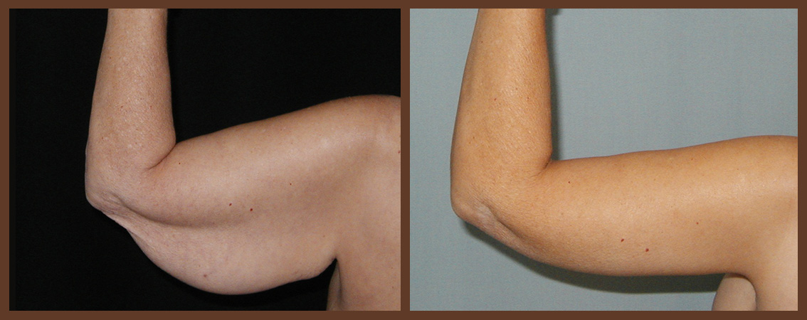 arm-lift-before-and-after-1-virginia-beach-plastic-surgeon-VA-0099-JSA