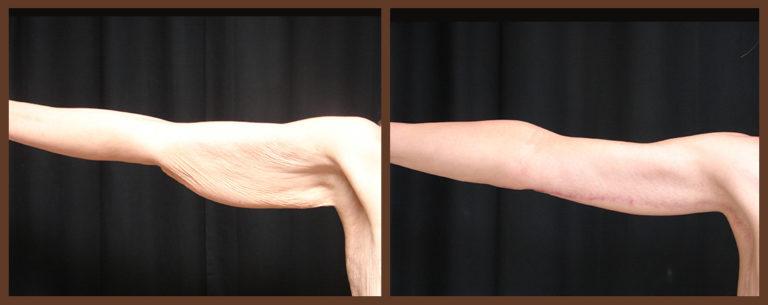 arm-lift-before-and-after-1-virginia-beach-plastic-surgeon-VA-0101-JSA