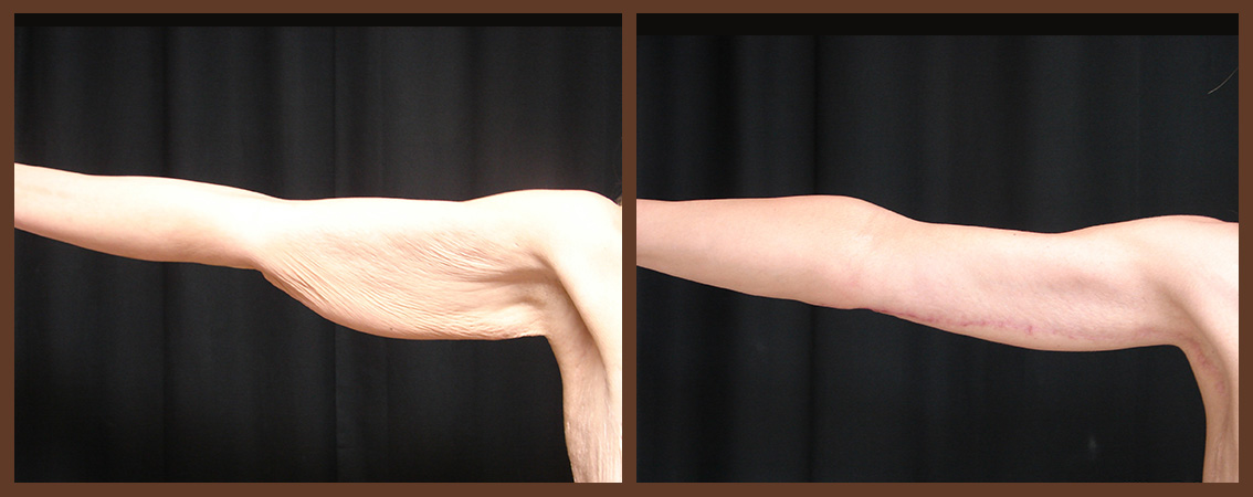 arm-lift-before-and-after-1-virginia-beach-plastic-surgeon-VA-0101-JSA