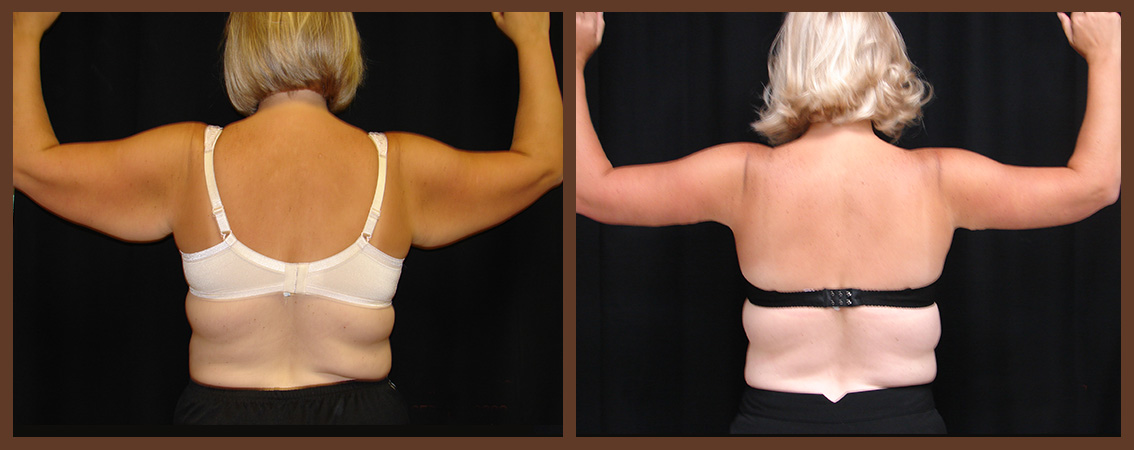arm-lift-before-and-after-1-virginia-beach-plastic-surgeon-VA-0102-JSA