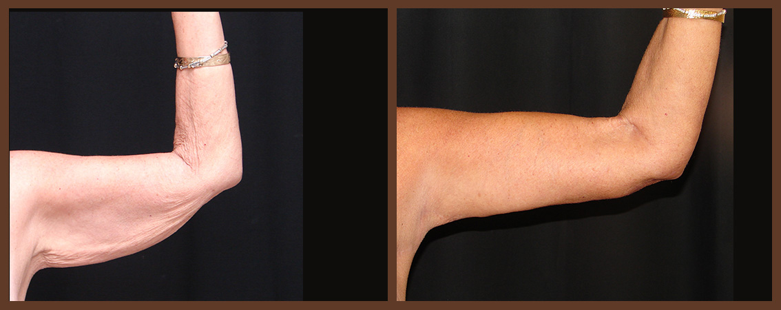 arm-lift-before-and-after-2-virginia-beach-plastic-surgeon-VA-0100-JSA