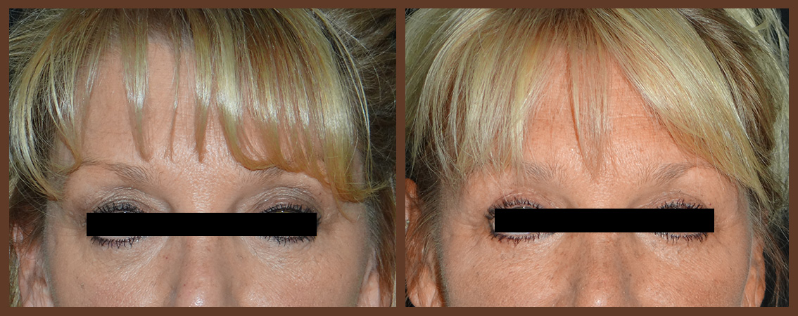bleph-before-and-after-1-virginia-beach-plastic-surgeon-VA-0136-denk