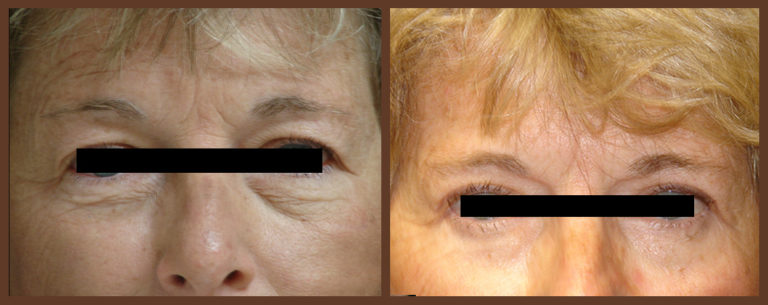 bleph-before-and-after-1-virginia-beach-plastic-surgeon-VA-0139-denk