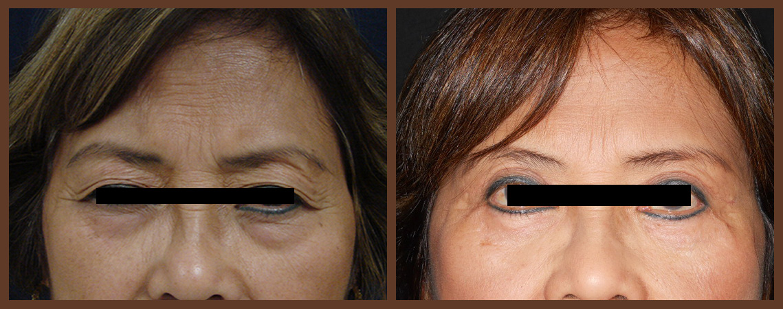 bleph-before-and-after-1-virginia-beach-plastic-surgeon-VA-0142-jacobs
