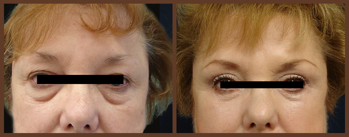 bleph-before-and-after-1-virginia-beach-plastic-surgeon-VA-0143-jacobs