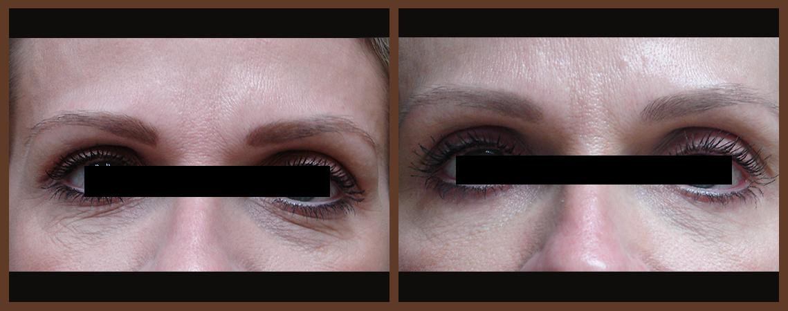 bleph-before-and-after-1-virginia-beach-plastic-surgeon-VA-0144-JSA