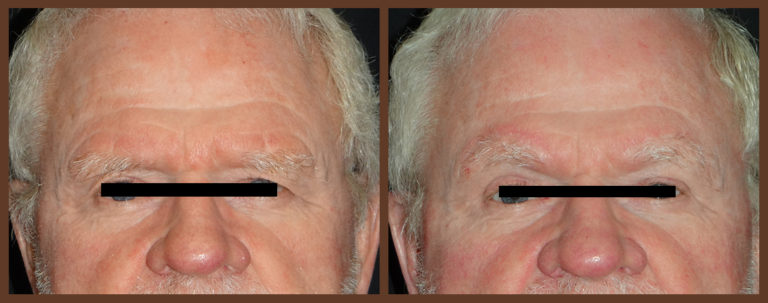 bleph-before-and-after-1-virginia-beach-plastic-surgeon-VA-0148-denk
