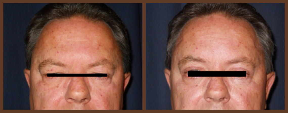 bleph-before-and-after-1-virginia-beach-plastic-surgeon-VA-0151-jacobs