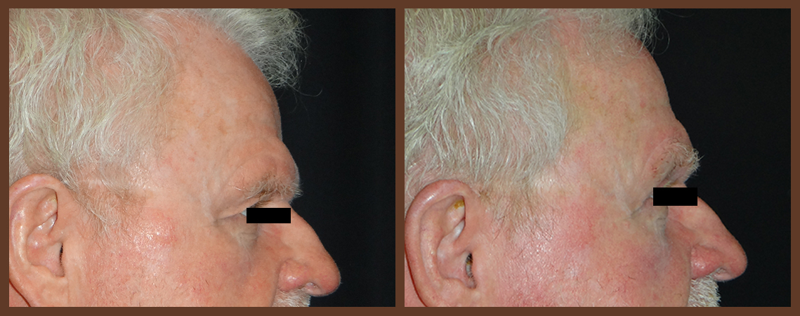 bleph-before-and-after-2-virginia-beach-plastic-surgeon-VA-0148-denk