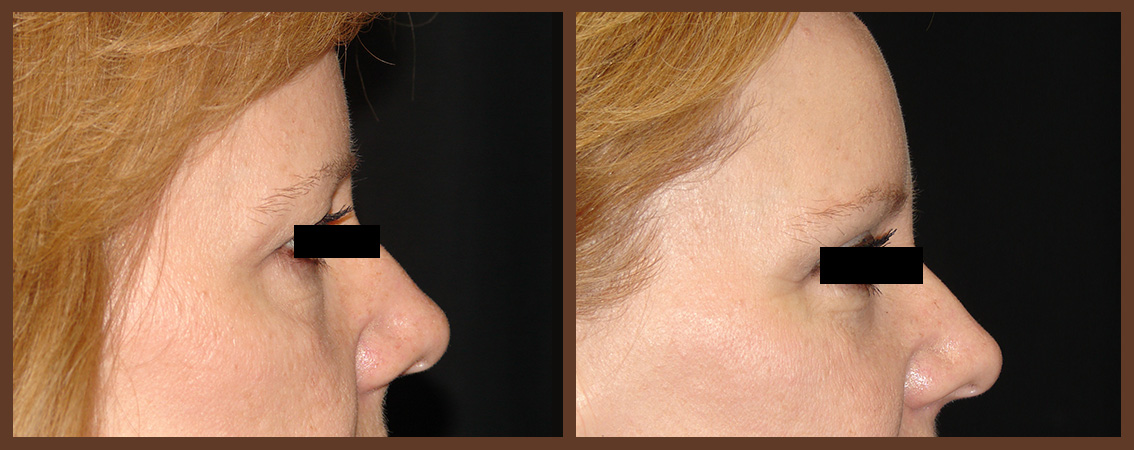 bleph-before-and-after-2-virginia-beach-plastic-surgeon-VA-0149-denk