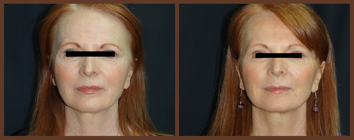 botox-before-and-after-1-virginia-beach-plastic-surgeon-VA-0167-denk