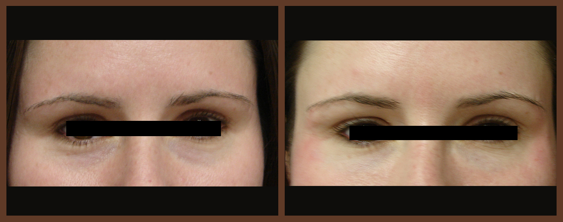 botox-before-and-after-1-virginia-beach-plastic-surgeon-VA-0168-denk