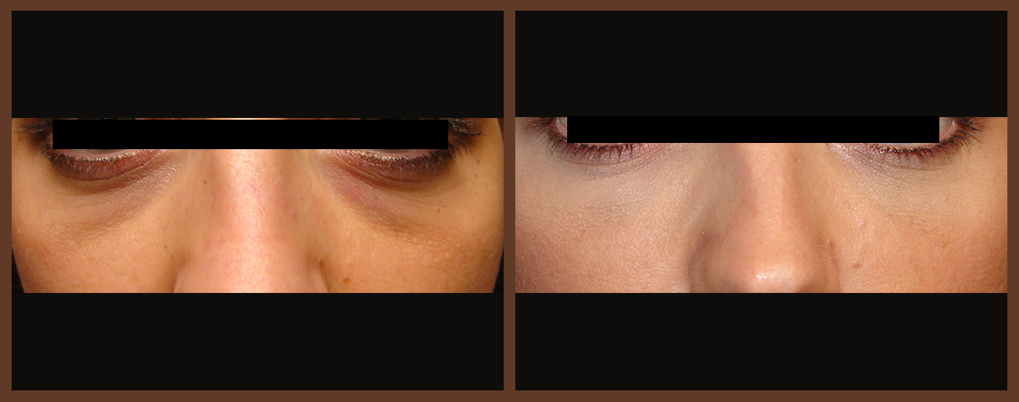 botox-before-and-after-1-virginia-beach-plastic-surgeon-VA-0169-denk