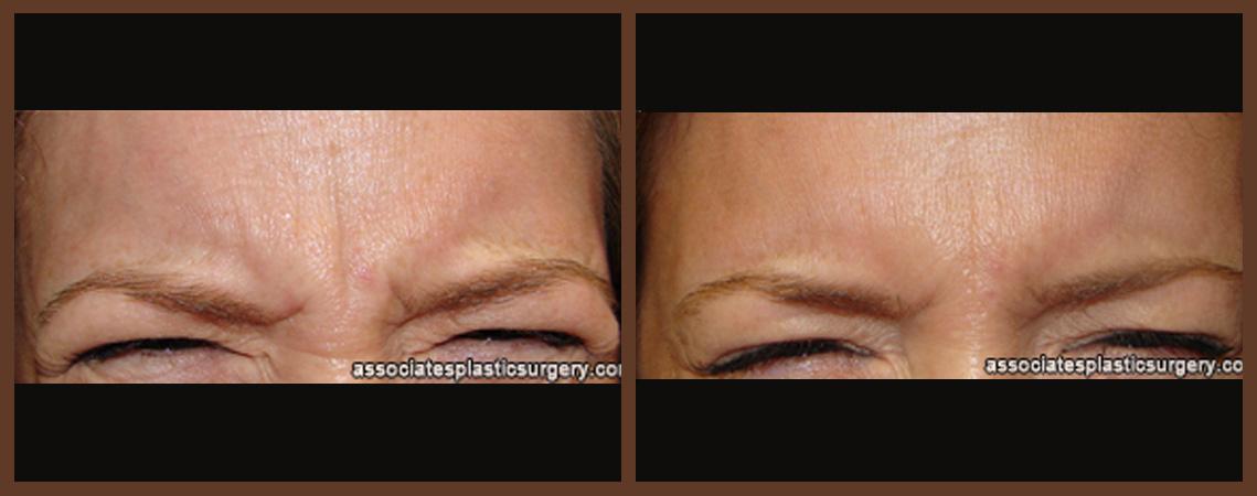 botox-before-and-after-1-virginia-beach-plastic-surgeon-VA-0170-denk