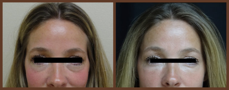 botox-before-and-after-1-virginia-beach-plastic-surgeon-VA-0171-jacobs
