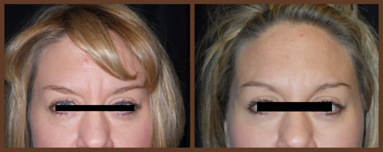 botox-before-and-after-1-virginia-beach-plastic-surgeon-VA-0172-jacobs