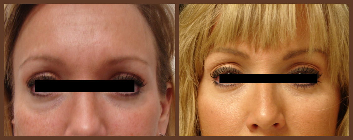 botox-before-and-after-1-virginia-beach-plastic-surgeon-VA-0173-jacobs