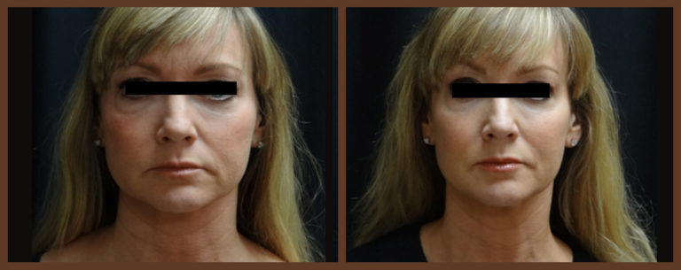 botox-before-and-after-1-virginia-beach-plastic-surgeon-VA-0174-jacobs