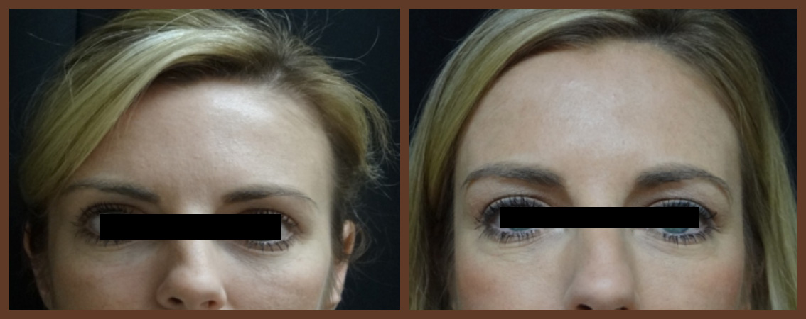 botox-before-and-after-1-virginia-beach-plastic-surgeon-VA-0175-jacobs