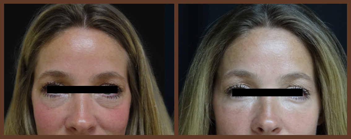 botox-before-and-after-1-virginia-beach-plastic-surgeon-VA-0176-jacobs