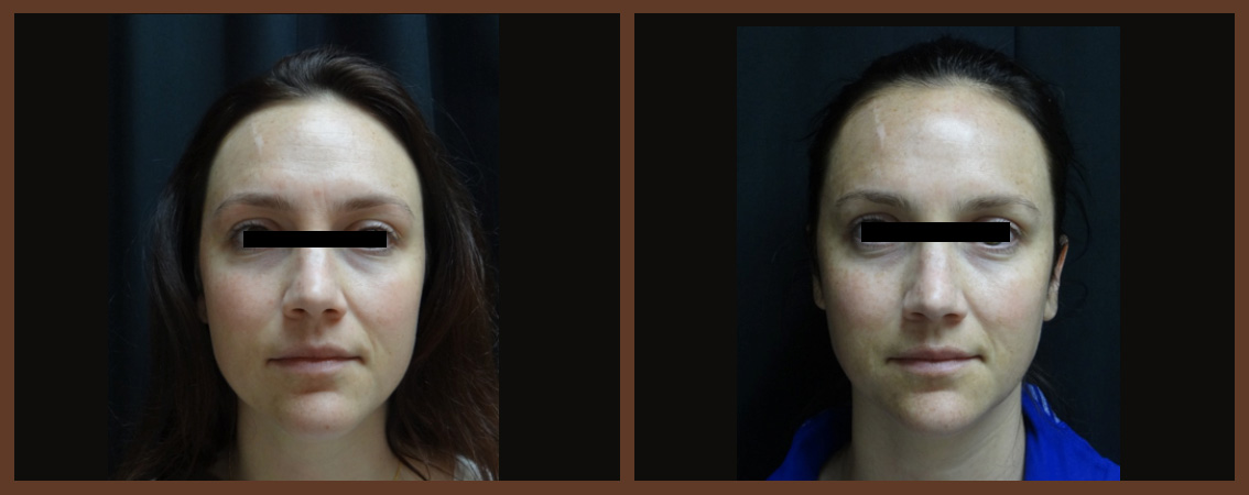 botox-before-and-after-1-virginia-beach-plastic-surgeon-VA-0178-jacobs