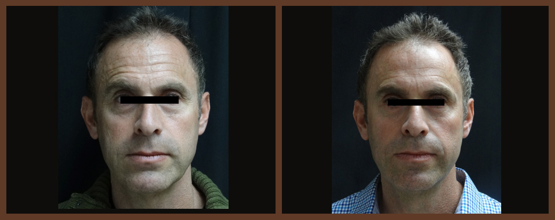 botox-before-and-after-1-virginia-beach-plastic-surgeon-VA-0179-jacobs