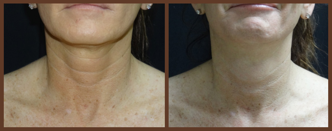 botox-before-and-after-1-virginia-beach-plastic-surgeon-VA-0180-jacobs