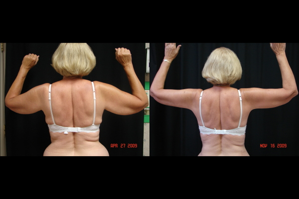 brachioplasty-before-and-after-virginia-beach-plastic-surgeon-VA-101-denk