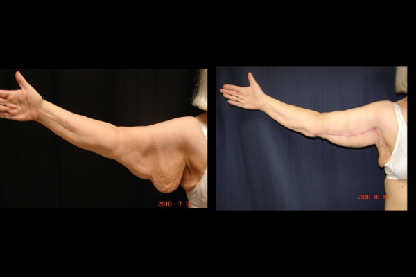 brachioplasty-before-and-after-virginia-beach-plastic-surgeon-VA-101-jacobs