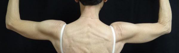 brachioplasty-post-op-1-virginia-beach-plastic-surgeon-VA-102-jacobs