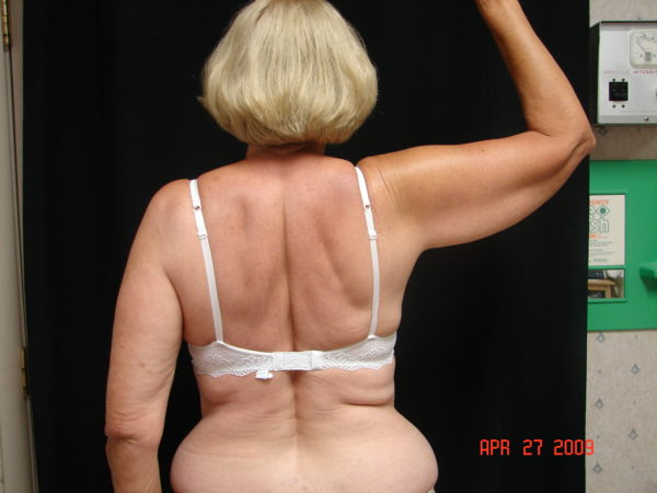 brachioplasty-pre-op-1-virginia-beach-plastic-surgeon-VA-101-denk