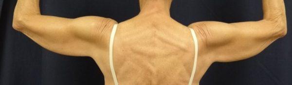 brachioplasty-pre-op-1-virginia-beach-plastic-surgeon-VA-102-jacobs